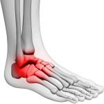 a foot and ankle, showing the inflamed area in red