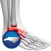 Podiatry Physicians Surgeons In North Carolina